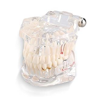 Yosoo Transparent Typodont Dental Zähne Lehr-Studie-Modell Mündliche Abnehmbare Dental-Pädagogisches Modell
