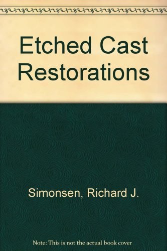 Etched Cast Restorations