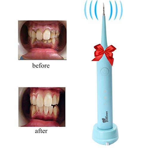 Zahnsteinentferner, LuckyFine Haushalt Tragbare Schallwelle Scaler Zahnmedizin Hygeine Reinigung Werkzeug Plaque entfernen und Zahn Fleck Blau