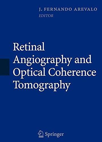 Retinal Angiography and Optical Coherence Tomography (2009-03-05)