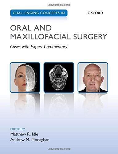 Challenging Concepts in Oral and Maxillofacial Surgery: Cases with Expert Commentary (2016-04-11)