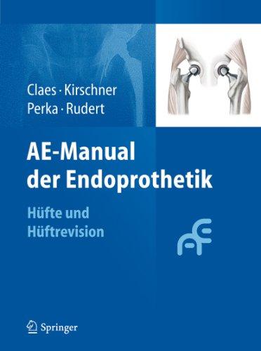AE-Manual der Endoprothetik: Hüfte und Hüftrevision
