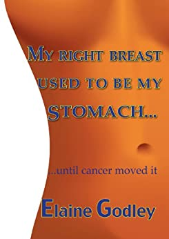 My Right Breast Used to be My Stomach: Until Cancer Moved It by [Godley, Elaine]