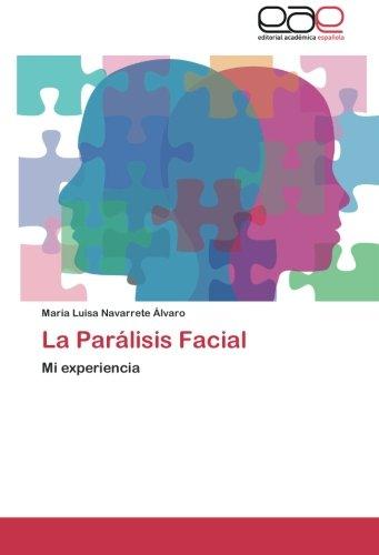 La Paralisis Facial