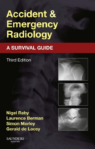 Accident and Emergency Radiology: A Survival Guide (English Edition)