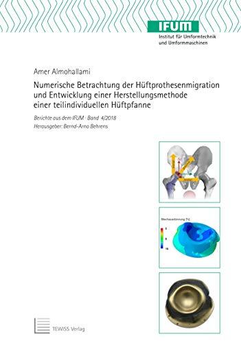 Numerische Betrachtung der Hüftprothesenmigration und Entwicklung einer Herstellungsmethode einer teilindividuellen Hüftpfanne (Berichte aus dem IFUM)