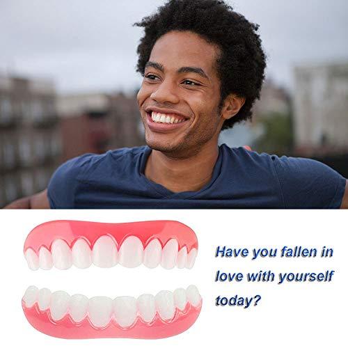 Kosmetik Zähne Weisser Machen Provisorischer Zahnersatz Veneer Ober und Unterkiefer Kosmetisches Zahnfurnier für Perfektes Lächeln