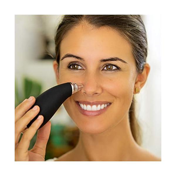 Limpiador de Poros y Puntos Negros – Microdermoabrasion – 2 Fuerzas de Aspiración, 4 Boquillas 2 Microcristalinas, 2 Extractores, 1 Estuche, 30 Filtros de Recambio, Cuidado de la Piel – Exfoliante