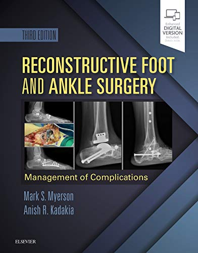 Reconstructive Foot and Ankle Surgery: Management of Complications, 3e por Mark S. Myerson MD