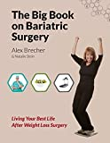 The BIG Book on Bariatric Surgery: Living Your Best Life After Weight Loss Surgery (The BIG Books on Weight Loss Surgery) (Volume 4) by Brecher, Alex, Stein, Natalie (2014) Paperback