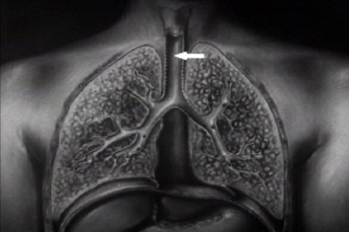 historic-tuberculosis-films-dvd-history-of-pulmonary-mycobacterium-tb-lung-disease-films