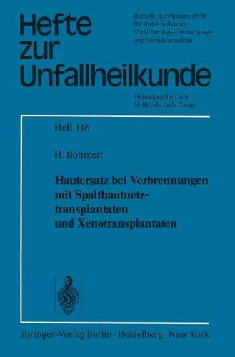 """Hautersatz bei Verbrennungen mit Spalthautnetztransplantaten und Xenotransplantaten (Hefte zur Zeitschrift """"Der Unfallchirurg"""", Band 116)"""