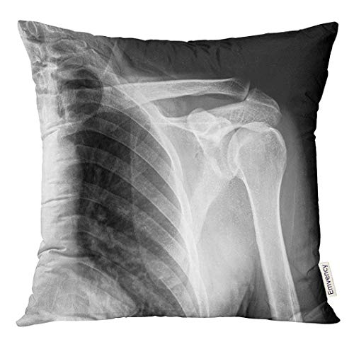 Ntpclsuits Throw Pillow Cover Chest X Ray Film of Shoulder Body Decorative Pillow Case Home Decor Square 18x18 Inches Pillowcase