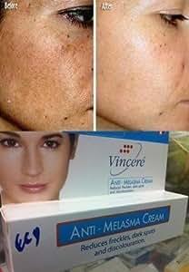 Vin 21 Anti Melasma Cream Reduces Dark Spots, Age Spots, Sun Spots, Pigmentation, Freckles 15 G.