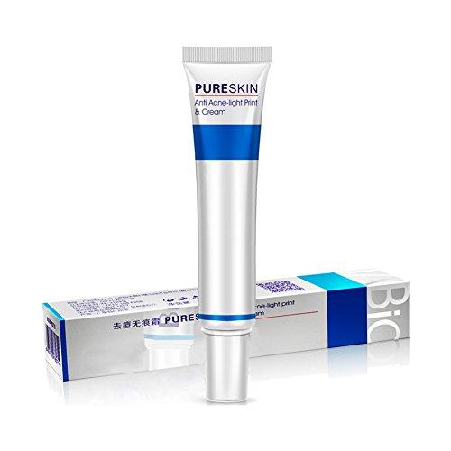 ROPALIA Entfernen Von Akne Anti Akne Stretch Marks Creme Gesichtsbehandlung Pflege Schrumpfen Poren