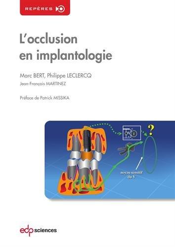 L'occlusion en implantologie par Marc Bert