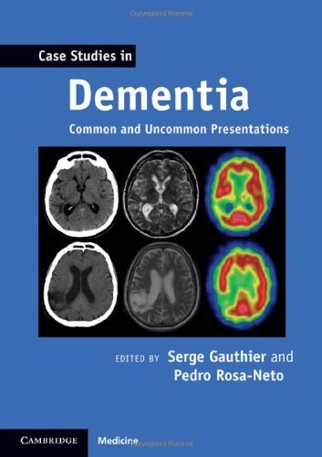 Case Studies in Dementia: Common and Uncommon Presentations (Case Studies in Neurology) by Serge Gauthier (Editor), Pedro Rosa-Neto (Editor) (21-Apr-2011) Paperback