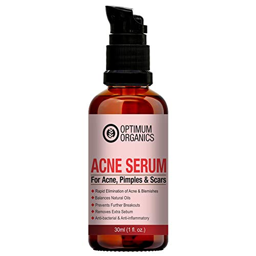 Optimum Organics Ance Clearing Serum for Clearing Severe Acne, Breakout, Remover Pimple and Repair Skin