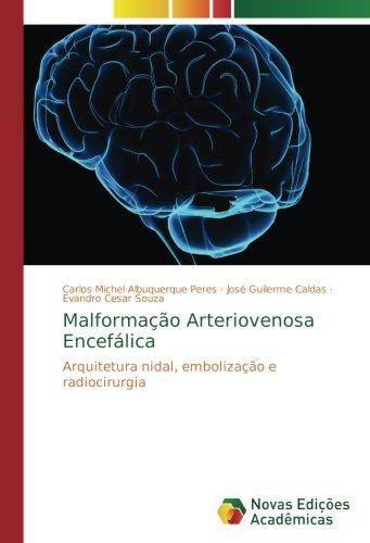 Malformação Arteriovenosa Encefálica: Arquitetura nidal, embolização e radiocirurgia