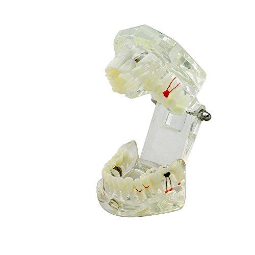 Vinmax Modèle d'Implant Dentaire Maladie des Dents avec Dents Pont de Restauration