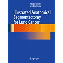 Illustrated Anatomical Segmentectomy for Lung Cancer (English Edition)