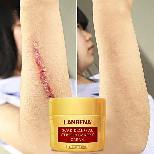 Allbestaye Narbenentfernung Creme Narbencreme für Aknenarben Dehnungsstreifen Surgical Scars Brennen Narben Scar Fade Cream Narbensalbe Behandeln Sie neue und alte Narben