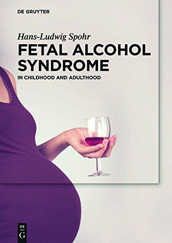 Fetal Alcohol Syndrome: A lifelong Challenge