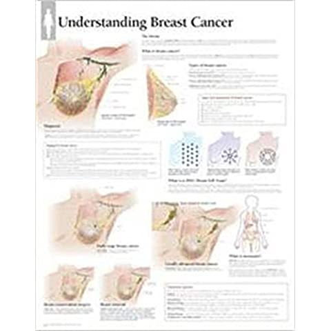 Understanding Breast Cancer Chart - Breast Cancer Poster
