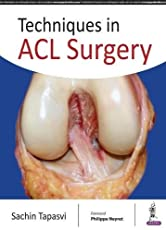 Techniques in ACL Surgery