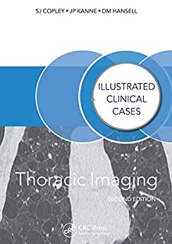 Thoracic Imaging: Illustrated Clinical Cases, Second Edition por Sue Copley epub