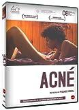 Acne (2008) ( Acn? ) ( Akmi ) by Yoel Berovici
