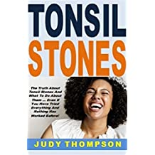 Tonsil Stones: The Truth About Tonsil Stones And What To Do About Them ... Even If You Have Tried Everything And Nothing Has Worked Before! (English Edition)