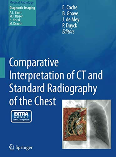 Comparative Interpretation of CT and Standard Radiography of the Chest (Medical Radiology) -