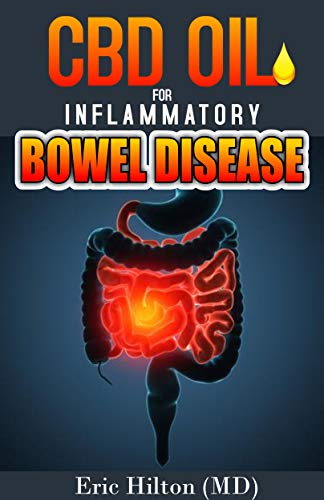 CBD OIL FOR INFLAMMATORY BOWEL DISEASE: Effective Remedy for IBD, Using the Powerful CBD OIL and Nutrition Tips to Manage IBD (English Edition)