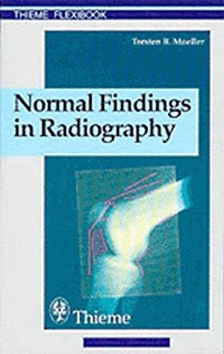 Normal Findings in Radiography (Thieme flexibook) by Torsten Moeller (1999-10-28)