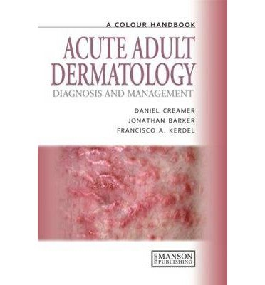 [(Acute Adult Dermatology: Diagnosis and Management: A Colour Handbook)] [Author: Daniel Creamer] published on (March, 2011)