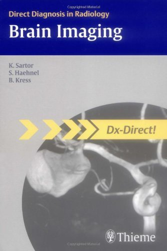 Brain Imaging (Direct Diagnosis in Radiology) 1st edition by Klaus Sartor (2007) Paperback