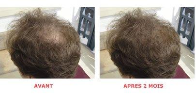 HairForce1 (Set) - Gegen beginnenden Haarausfall