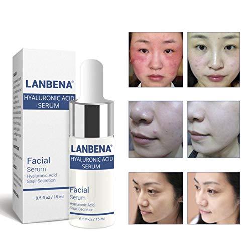 FORH Hyaluronsäure Serum für Gesicht Riesig 15 ml Beste Ant Aging Feuchtigkeitscreme für Haut -...