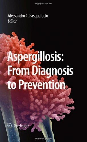 Aspergillosis: From Diagnosis To Prevention por Alessandro Comarú Pasqualotto