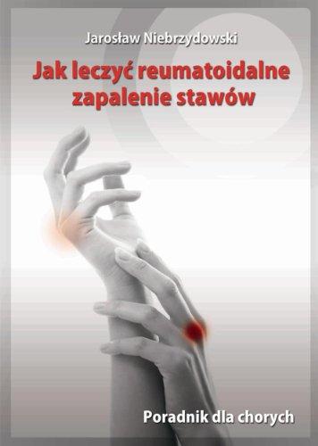 Jak leczyc reumatoidalne zapalenie stawow