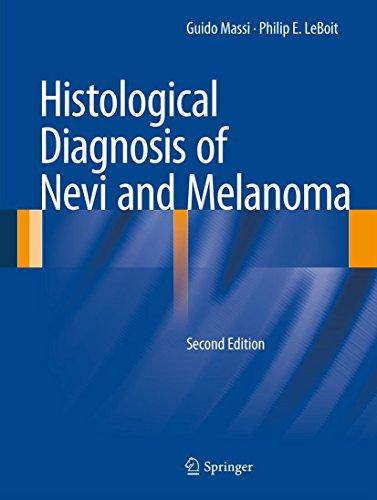 Histological Diagnosis of Nevi and Melanoma