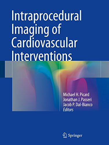 New pdf release whittles gait analysis e book dohhyperakt new pdf release intraprocedural imaging of cardiovascular interventions fandeluxe Choice Image