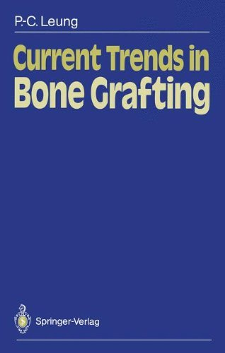 Current Trends In Bone Grafting por Robert B. Duthie