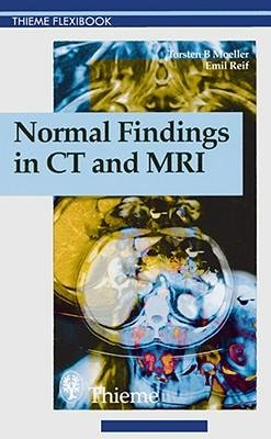 [(Normal Findings in CT and MRI)] [Author: Torsten B Moeller] published on (February, 2000)
