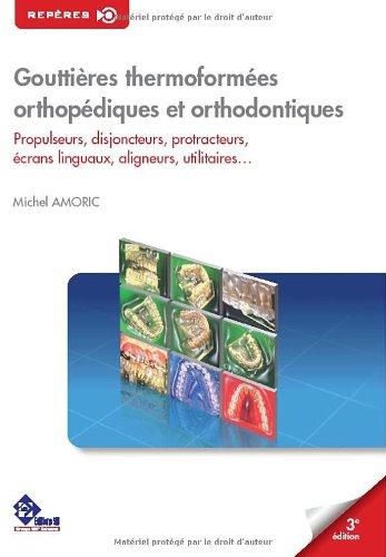 Gouttières thermoformées orthopédiques et orthodontiques : Propulseurs, disjoncteurs, protracteurs, écrans linguaux, aligneurs, utilitaires...