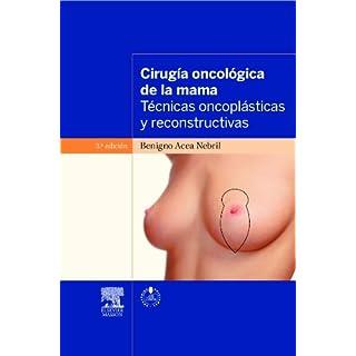 Técnicas oncoplásticas en el tratamiento quirúrgico del cáncer de mama