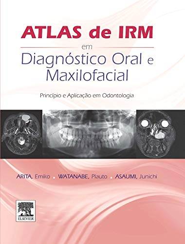 Atlas de IRM em Diagnóstico Oral e Maxilofacial. Princípio e Aplicação em Odontologia (Em Portuguese do Brasil)