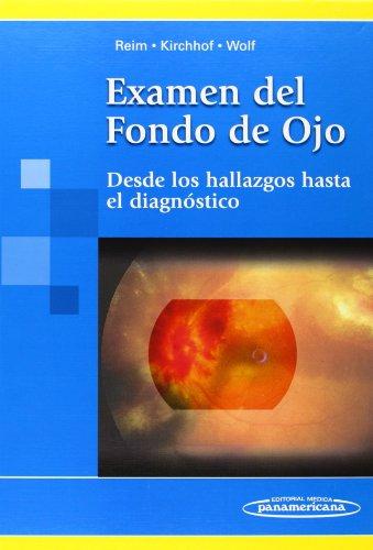 Examen Del Fondo De Ojo/ Exam of the Rear of the Eye: Desde Los Hallazgos Hasta El Diagnostico/ from the Findings to the Diagnostic