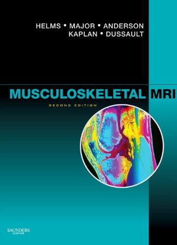 Musculoskeletal MRI E-Book (English Edition)